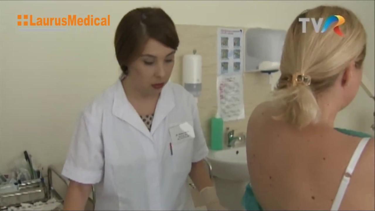 condiloamele genitale infectia cu hpv