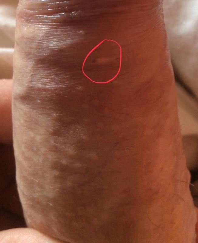 viermisori la bebelusi de 11 luni ouă de larvă helmint