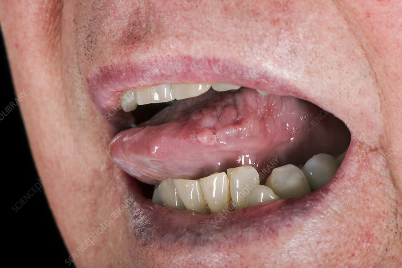 Hpv in mouth nhs - pcmaster.ro Hpv on tongue nhs