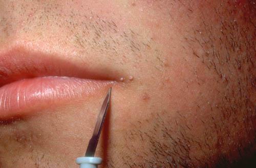 Human papillomavirus symptoms in mouth, Hpv virus lip