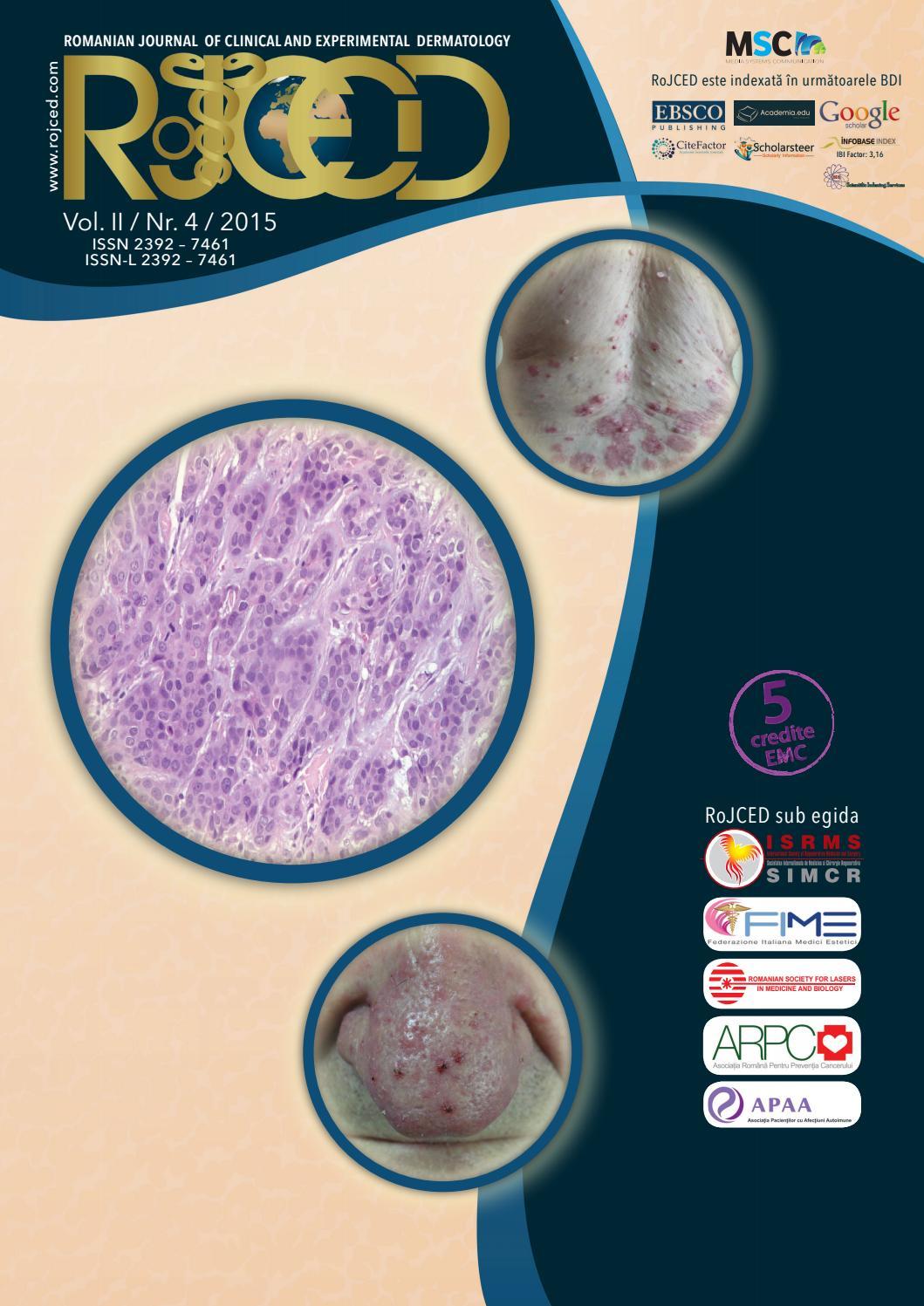 giardia elisa pozitivă cancer pancreatic treatment