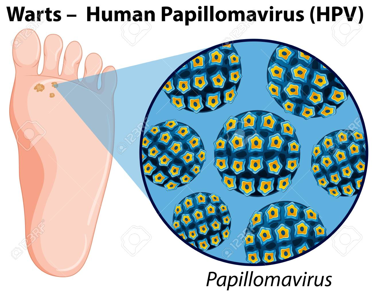 Hpv virus diagram - Human papillomavirus diagram