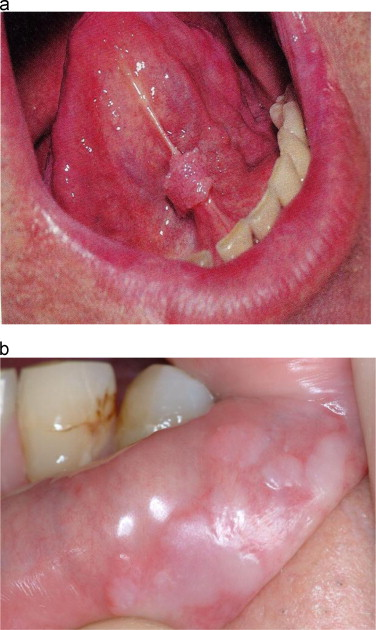 Human papillomavirus on the tongue
