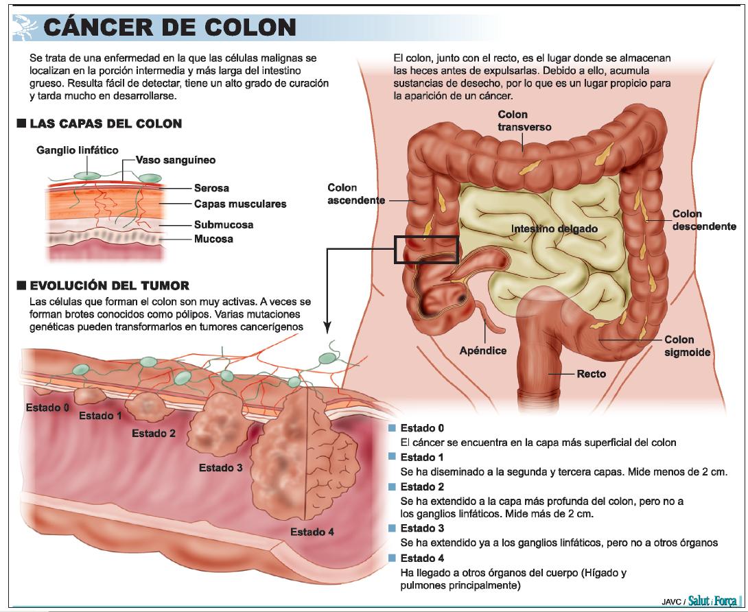 Cancer de colon que sintomas tiene, Sintomas de cancer de colon rectal