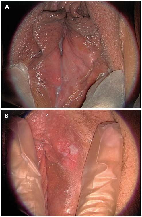 papillomavirus et demangeaisons