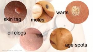 Warts on aging skin - Dermestetica Clinic