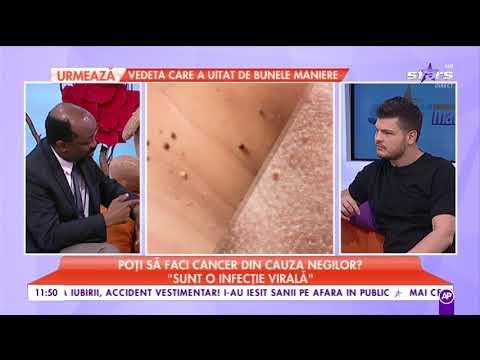 rectal cancer non surgical treatment tipuri de viermi la om tratamentul simptomelor