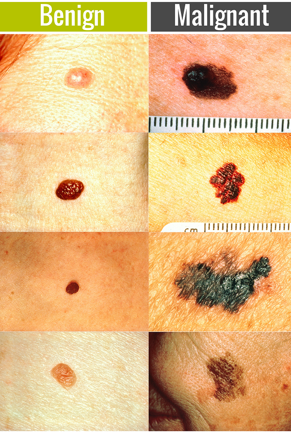 skin cancer benign vs malignant