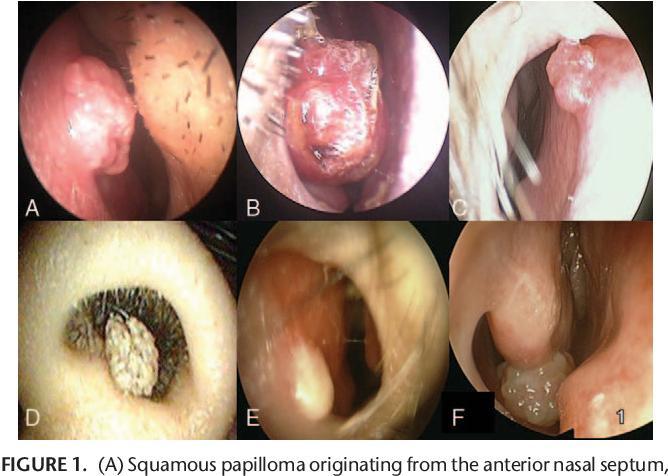 Papillomas nasal