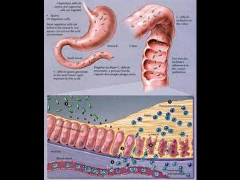 paraziti ai pielii curezone