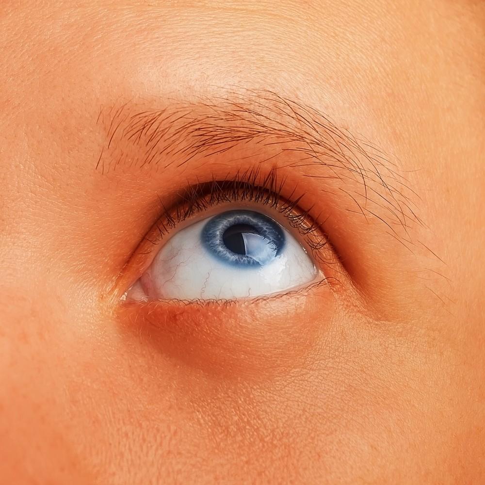 Papilloma pe ochi. Cauze de papilom pe pleoapă și metode de îndepărtare