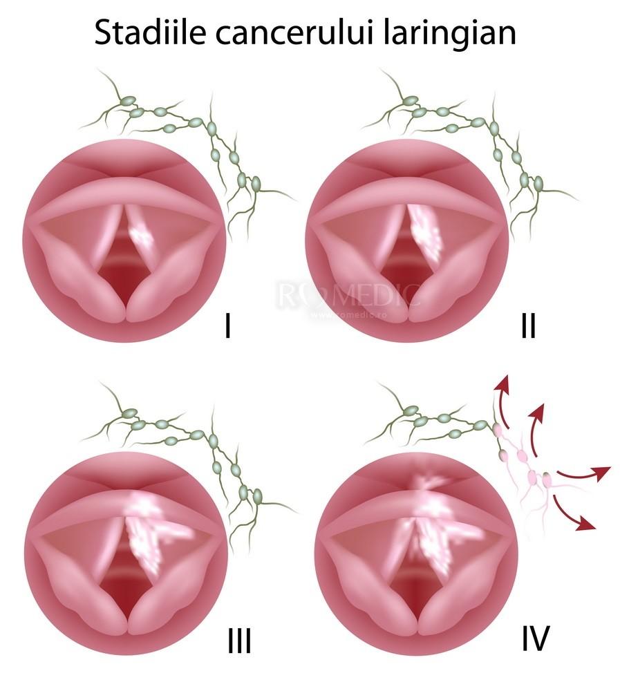 cancer laringian cauze human papillomavirus infection regions