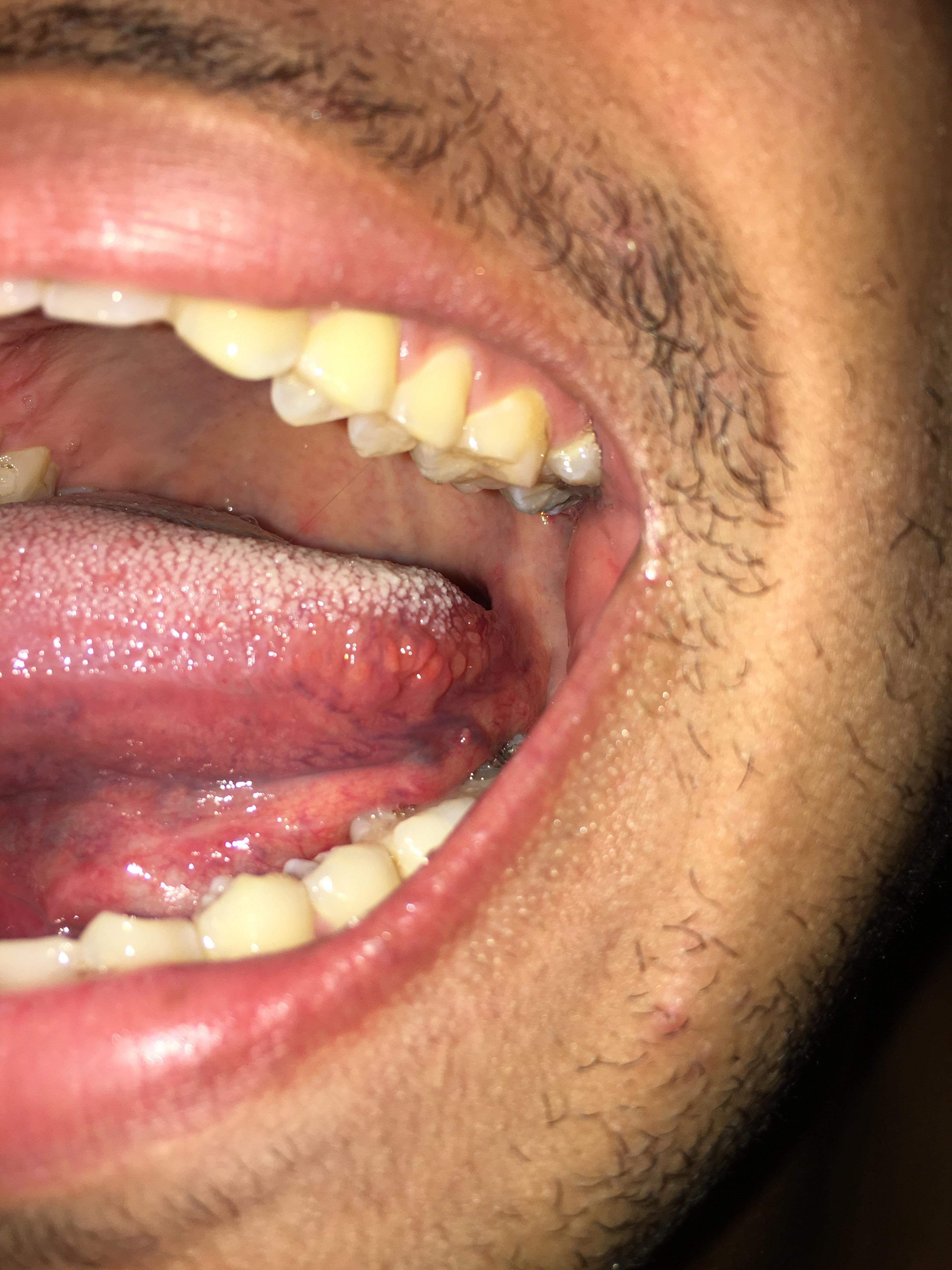 Hpv under tongue treatment. Hpv under tongue reddit