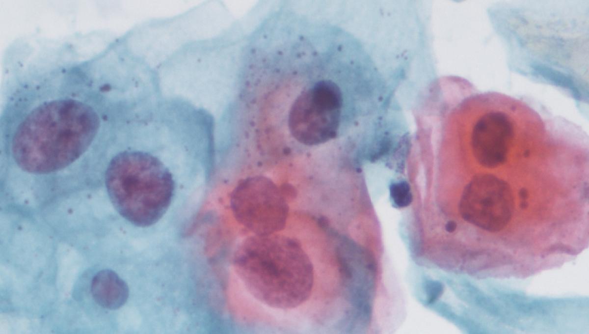 Papillomavirus rechute.