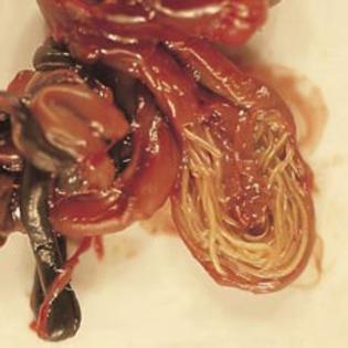 viermisori intestinali simptome Se pot îndepărta alunițele și papilomele?
