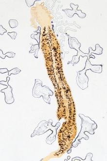 Infecția parazitară cu oxiuri — Telios
