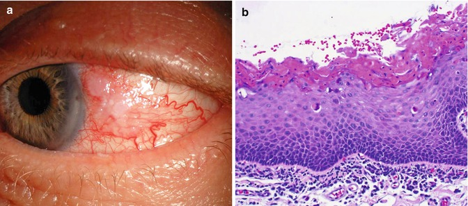 Conjunctival inverted papilloma - Inverted papilloma and squamous cell carcinoma, Case Report