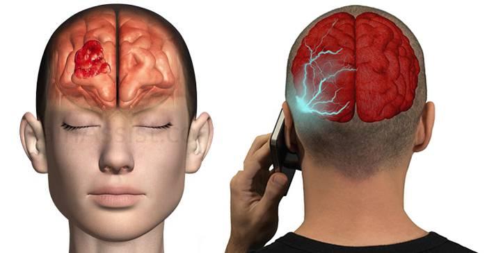 cancer malign creier