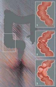 Cancerul de colon: Cauze și simptome