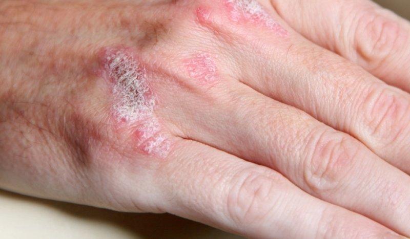 cancer de piele moarte