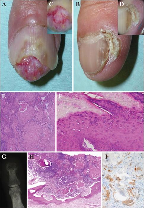prix operation papillomavirus