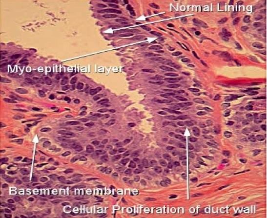 papilloma with hyperplasia