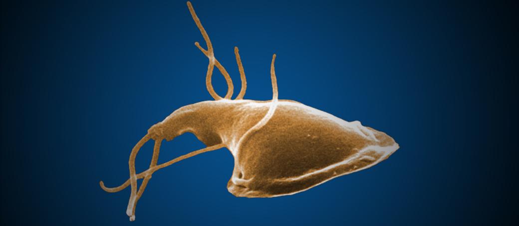 simptome giardia Chlamydia - pcmaster.ro, Giardia parasiet mens