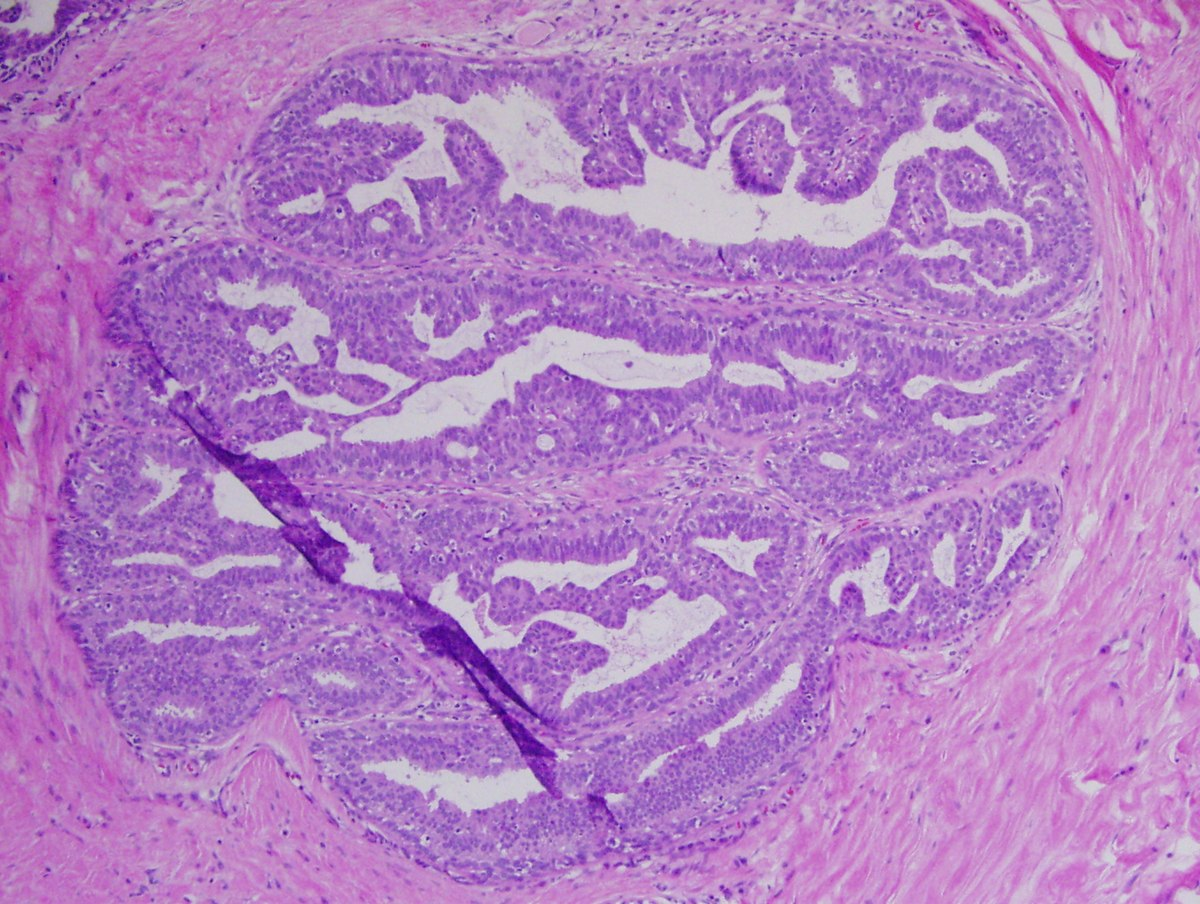 uvula papilloma pathology