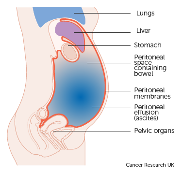 peritoneal cancer bloating