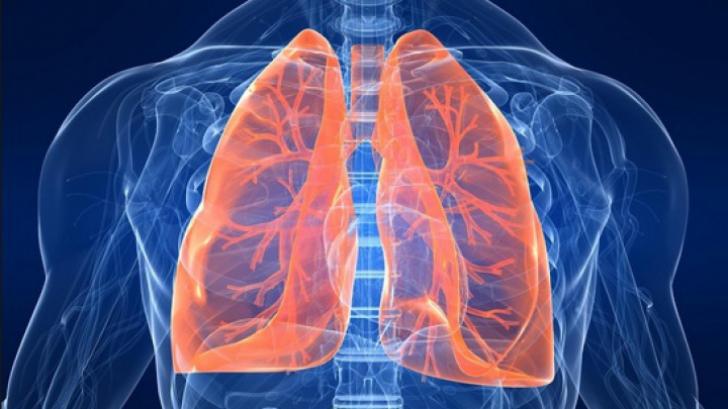 Cancerul bronhopulmonar (la plamani): simptome, investigatii, diagnostic