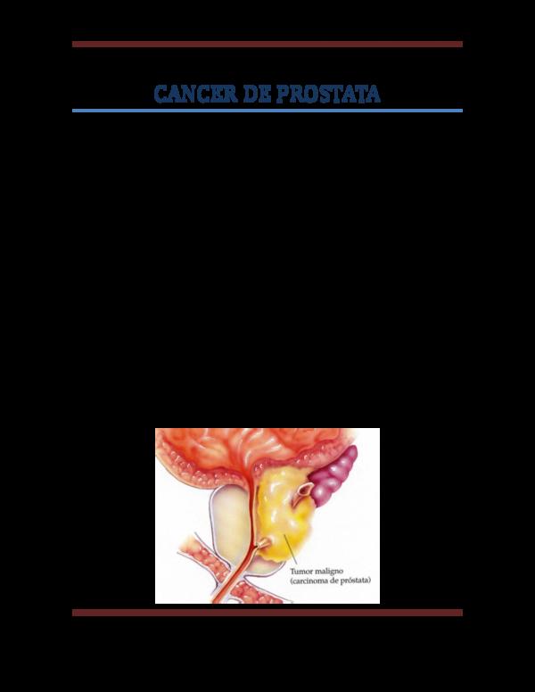Cancer de prostata definicion oms - pcmaster.ro