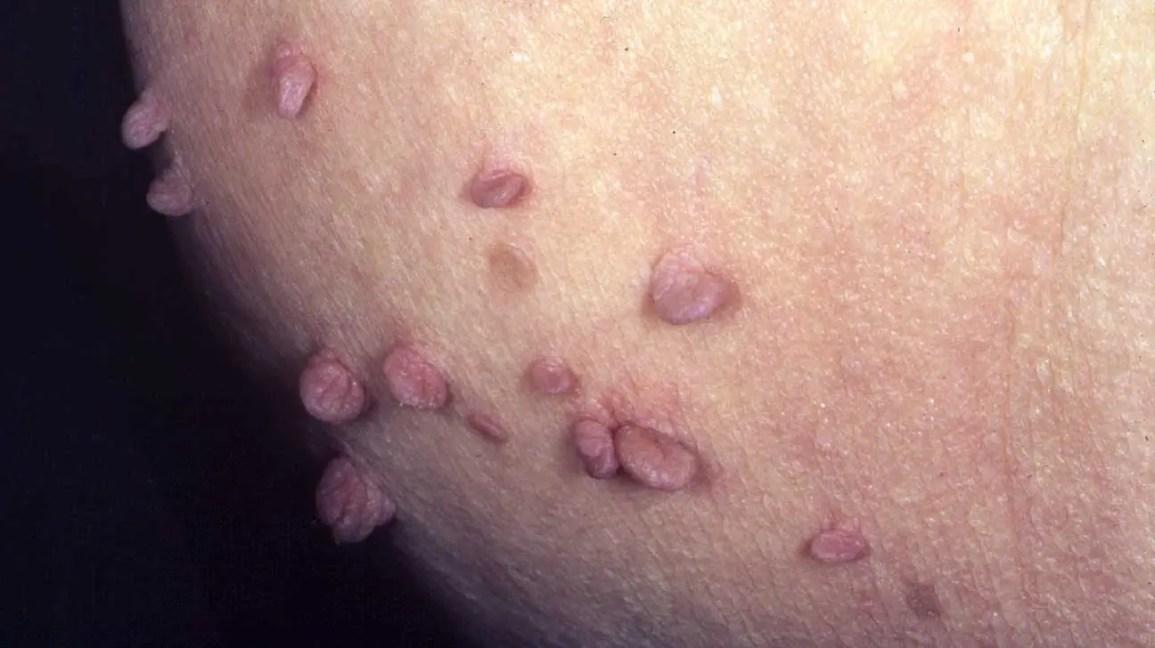Warts on skin genital, Traducere