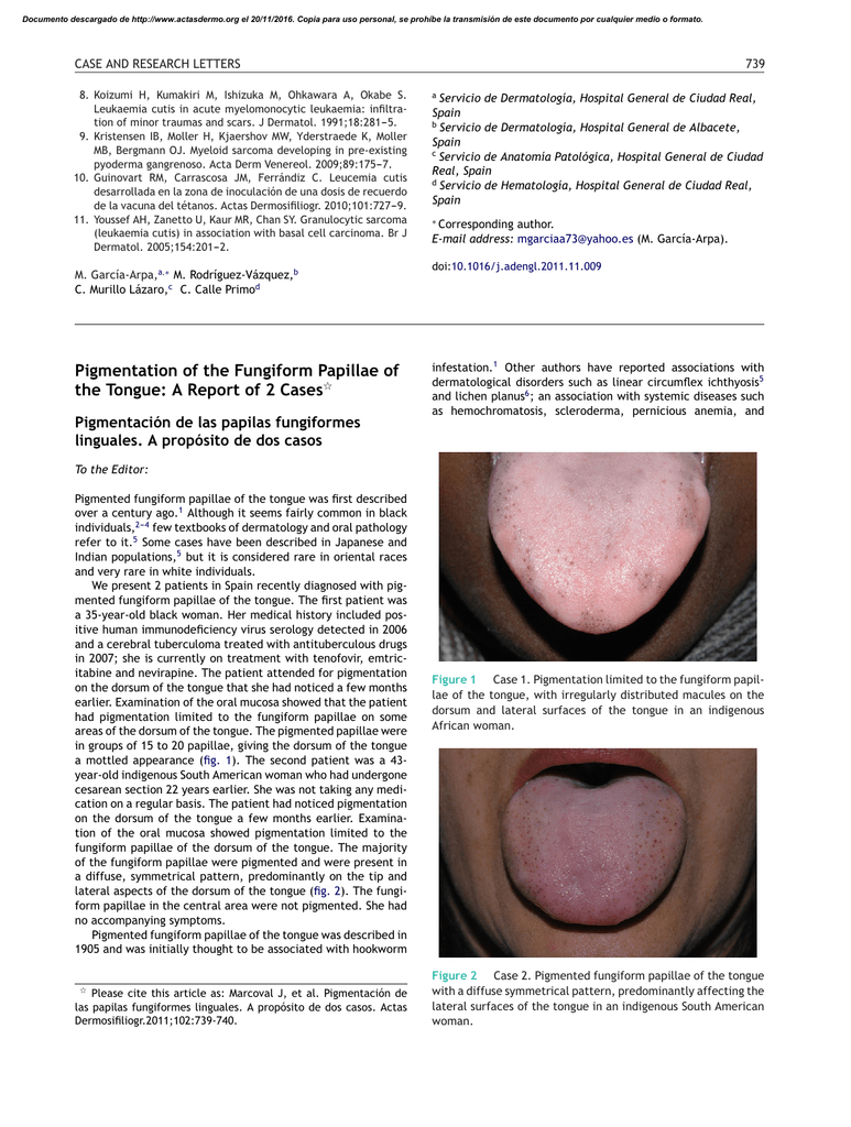 Fungiform papillae tongue treatment Does hpv on tongue go away