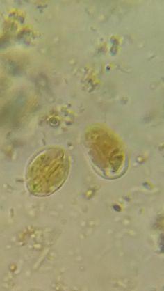 quiste giardia duodenalis medic care tratează papilomele la femei