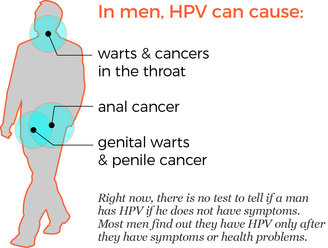 Hpv no cancer or warts - pcmaster.ro
