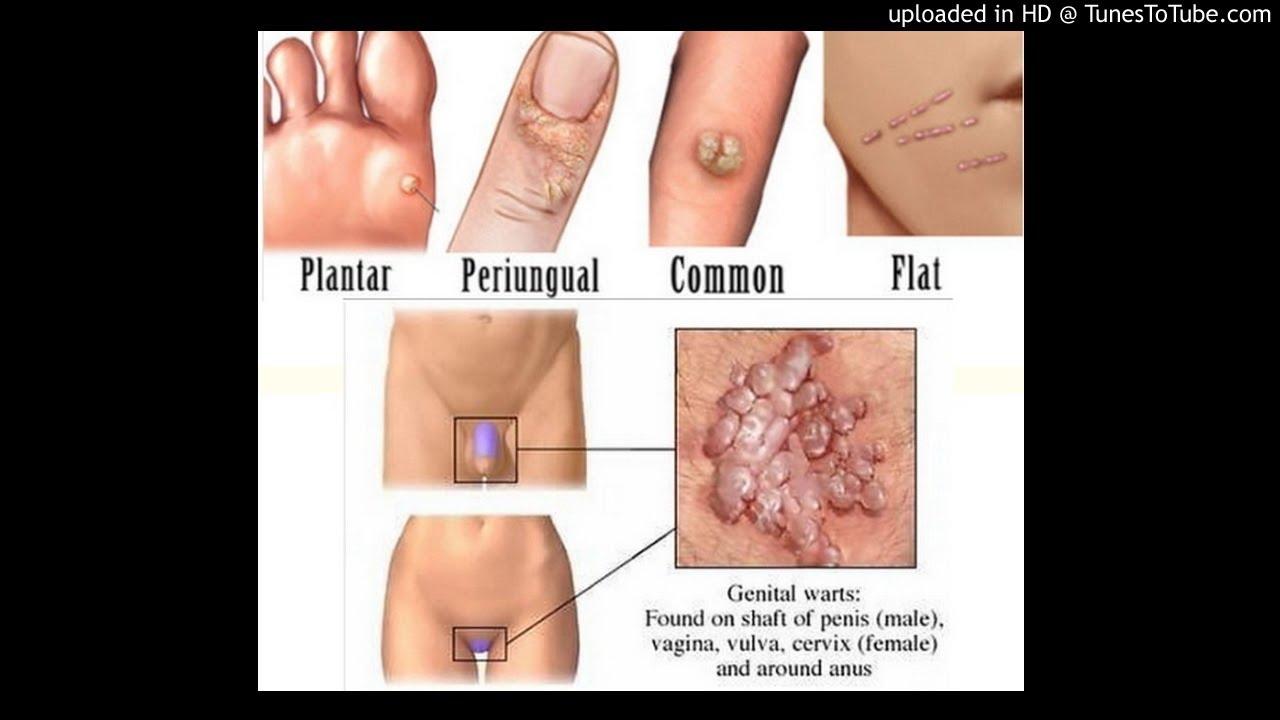 vermox helmintox