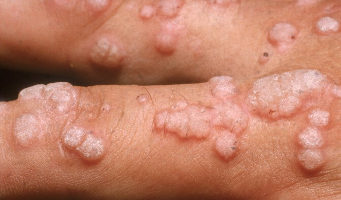 papiloma genital masculino sintomas