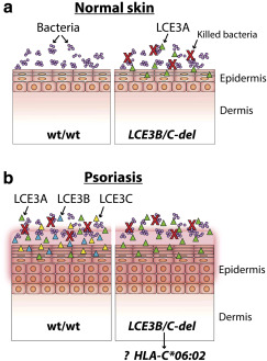 dysbiosis psoriasis