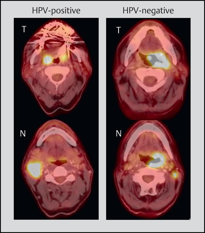 HPV nu e un motiv de panică, dacă mergeţi la medic regulat