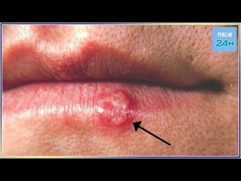 Papilloma virus e herpes labiale. Steroid cream for hpv, Hpv e herpes labiale