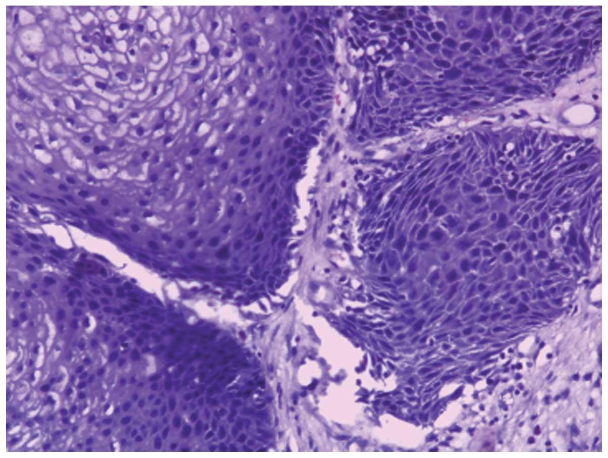 sinonasal inverted papilloma tumor