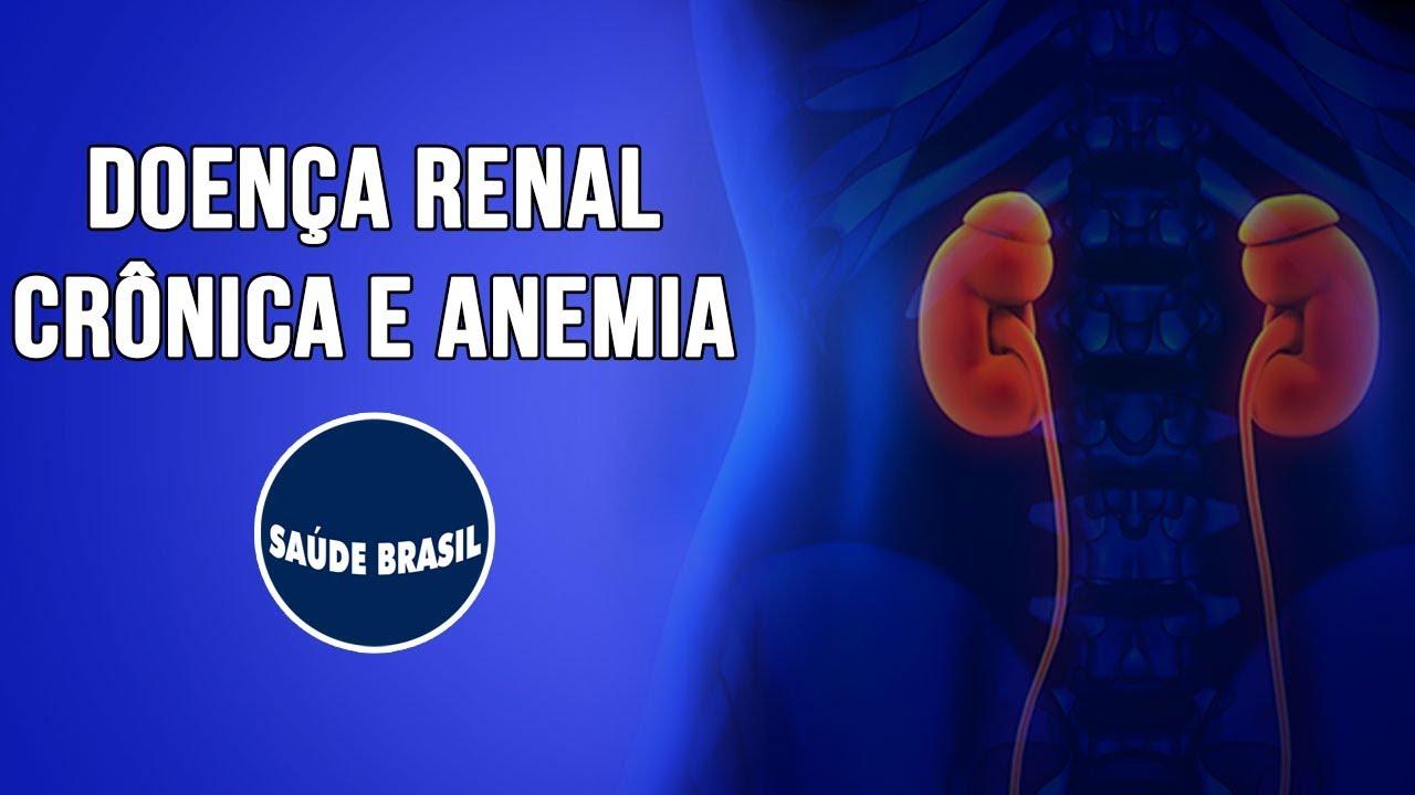Totul despre anemie: de ce apare, cum se manifesta, remedii si preventie