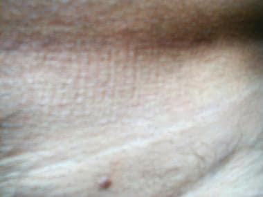 nodul sau condilom