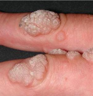 papiloma virus nedir kutil hpv pada pria