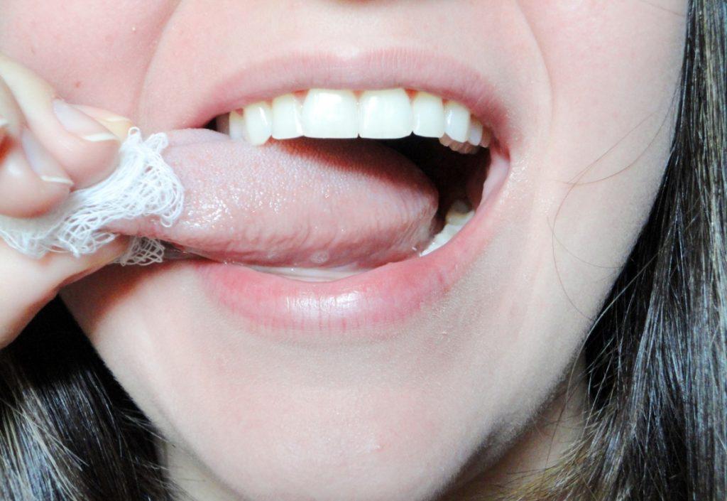 Papillomavirus na lingua