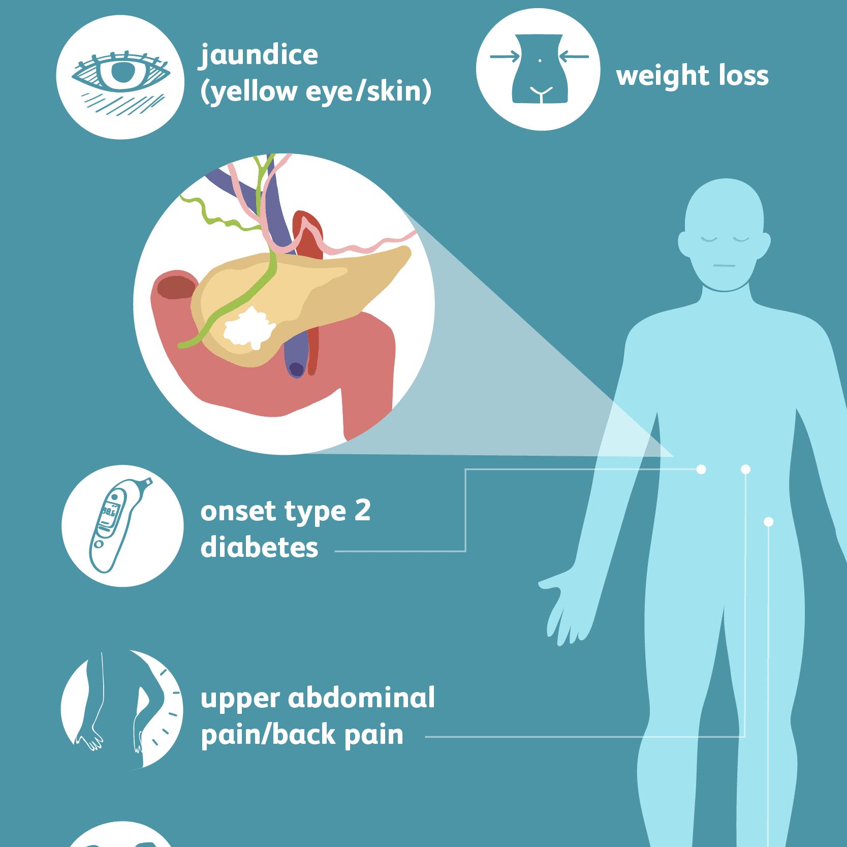 pancreatic cancer diagnosis extracția nematodului