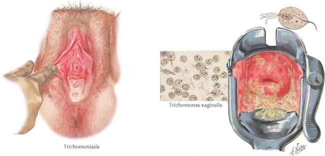 Tratamente boli cu transmitere sexuală