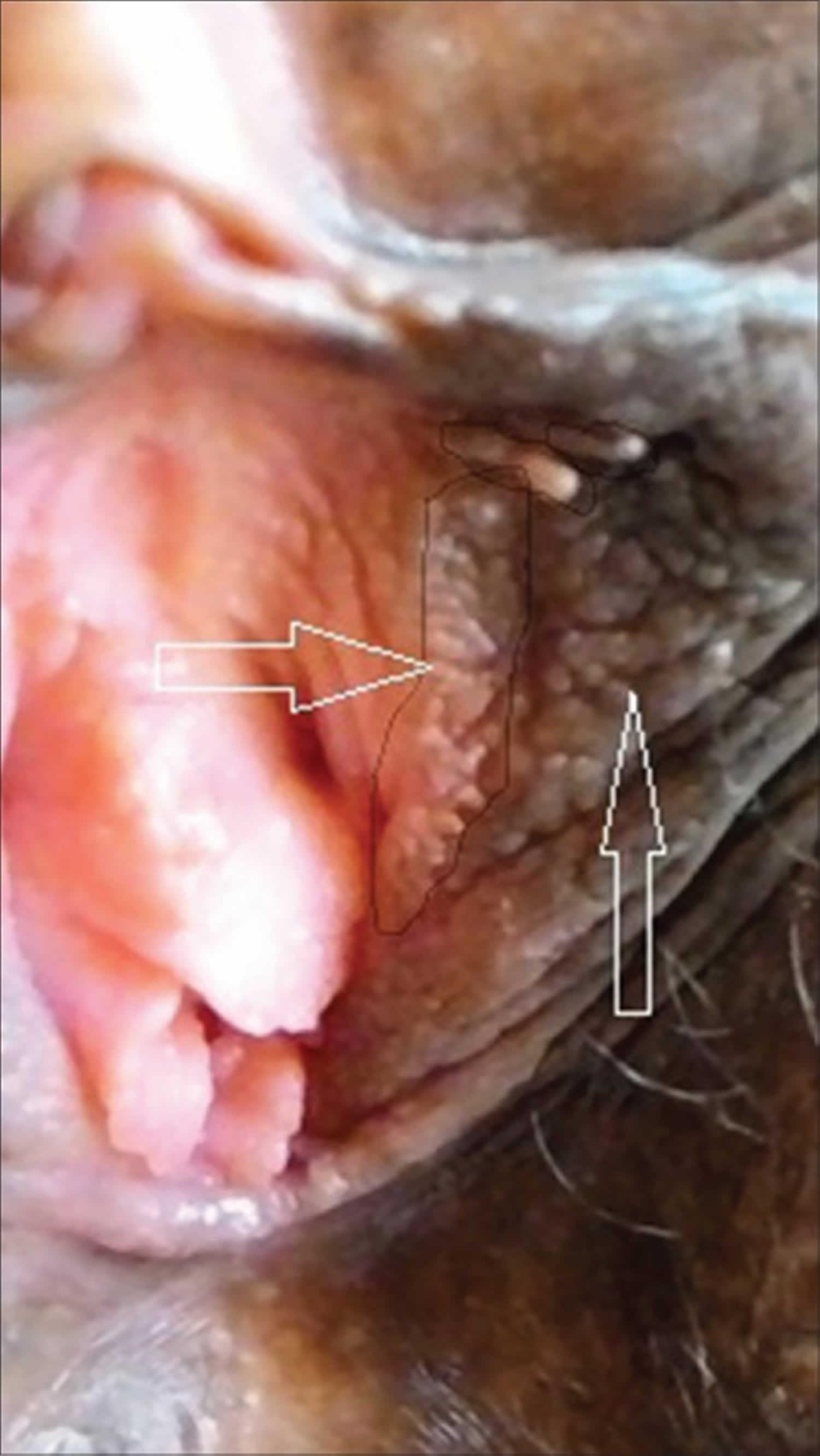 vestibular papillomatosis cream hpv et urticaire