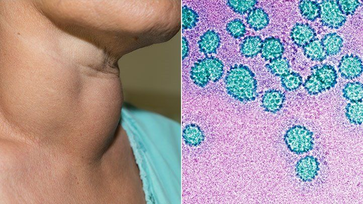 hpv virus only sexually transmitted