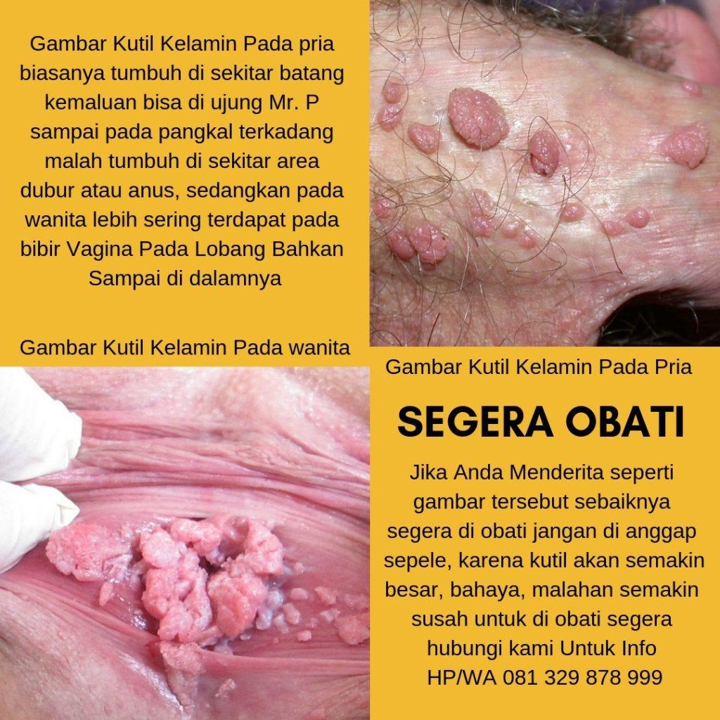este tratat papilomavirusul uman la femei